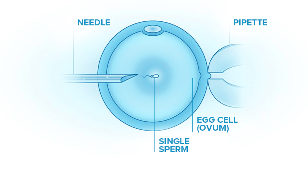 Intracytoplasmic-sperm-injection